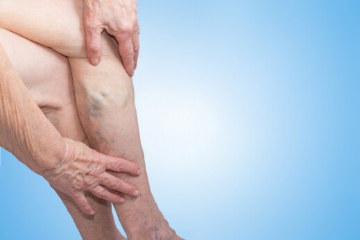 General Things to Know About Venous Insufficiency